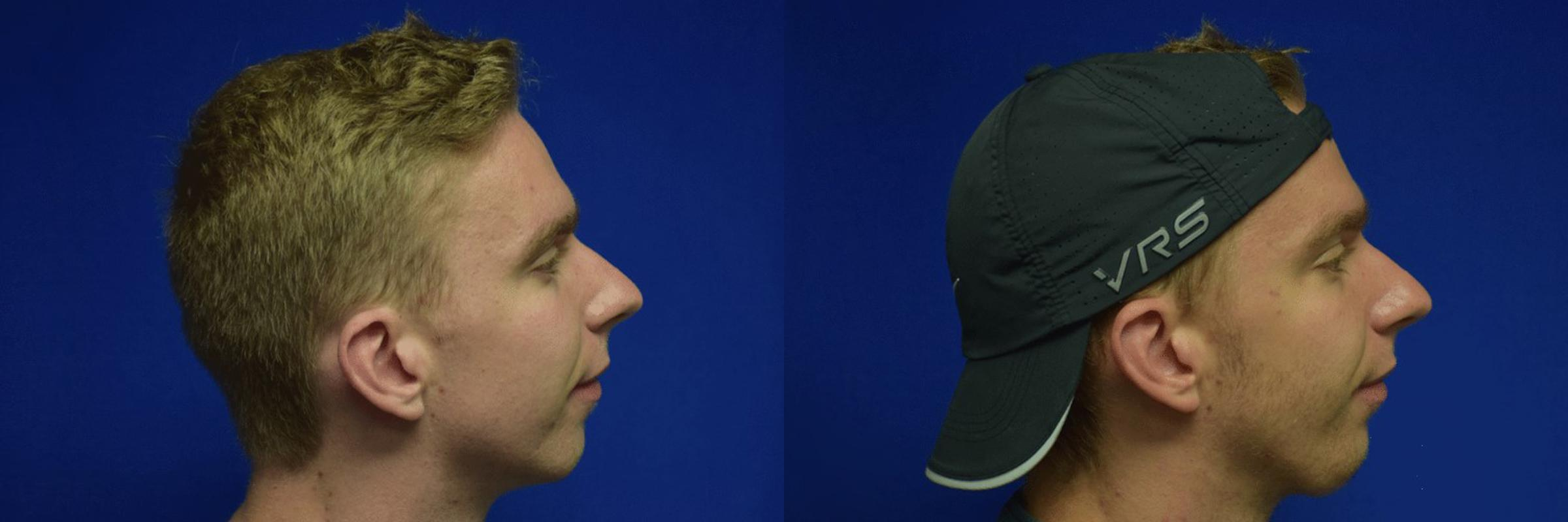 Chin Implant Before & After Photos | Ahmed Sufyan, MD