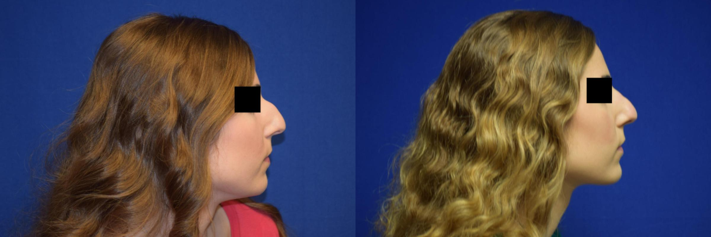 Rhinoplasty Before & After Photos | Ahmed Sufyan, MD