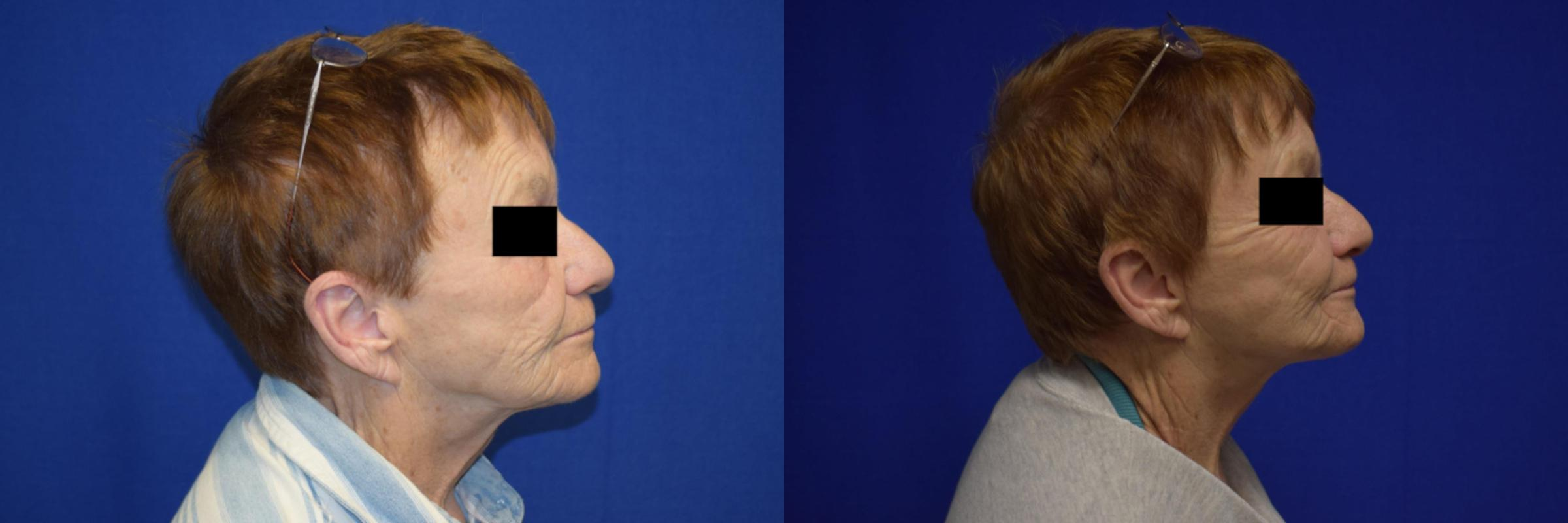 Neck Lift Before & After Photos | Ahmed Sufyan, MD